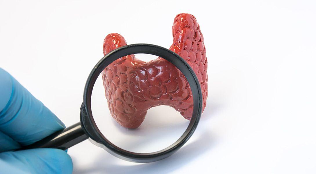 Choroba Hashimoto - dieta, odchudzanie, mity